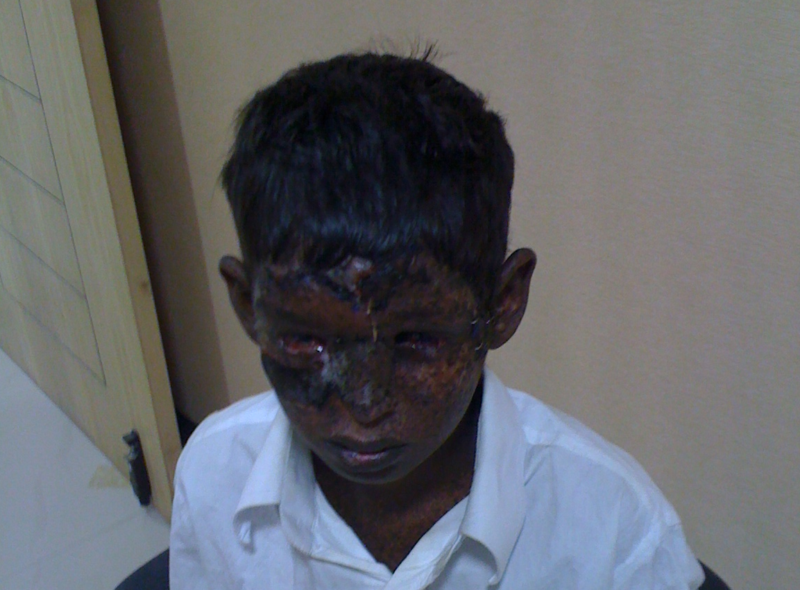 Bhargav After Operation 1