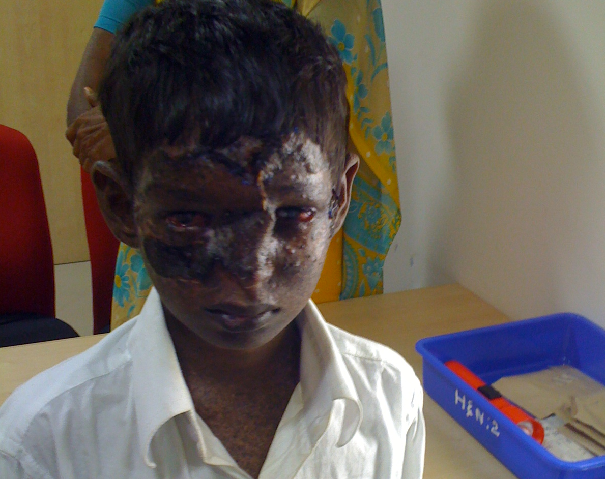Bhargav After Operation 3