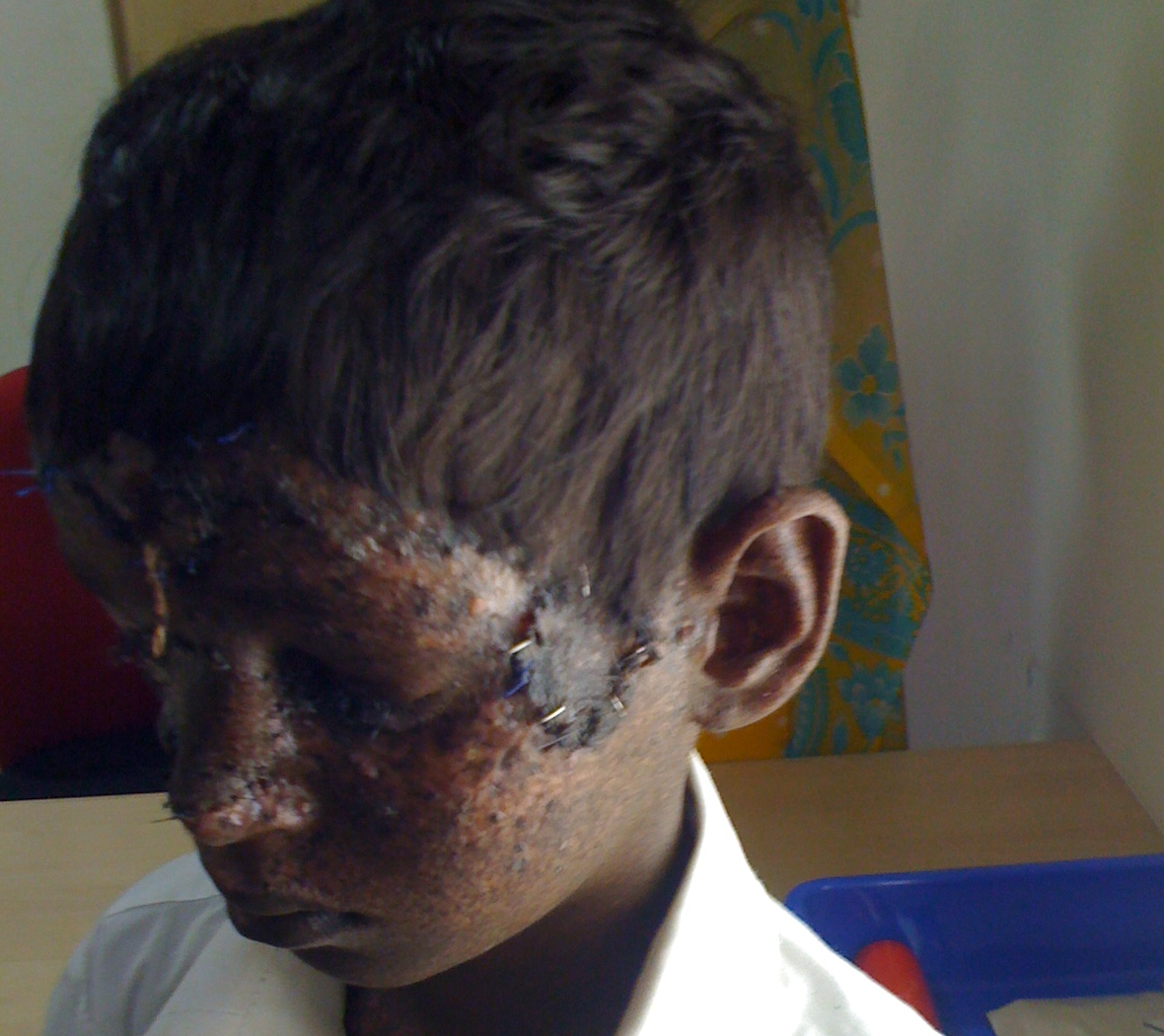 Bhargav After Operation 4